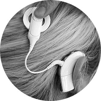 Das Mikrofon des Audioprozessors nimmt die Schallwellen auf und wandelt sie in elektrische Signale um. Diese werden über die Maghetspule drahtlos über die Haut zum Implantat übertragen und an die Elektroden in der Hörschnecke weitergegeben, die wiederum die Impulse an den Hörnerv weiterleiten.